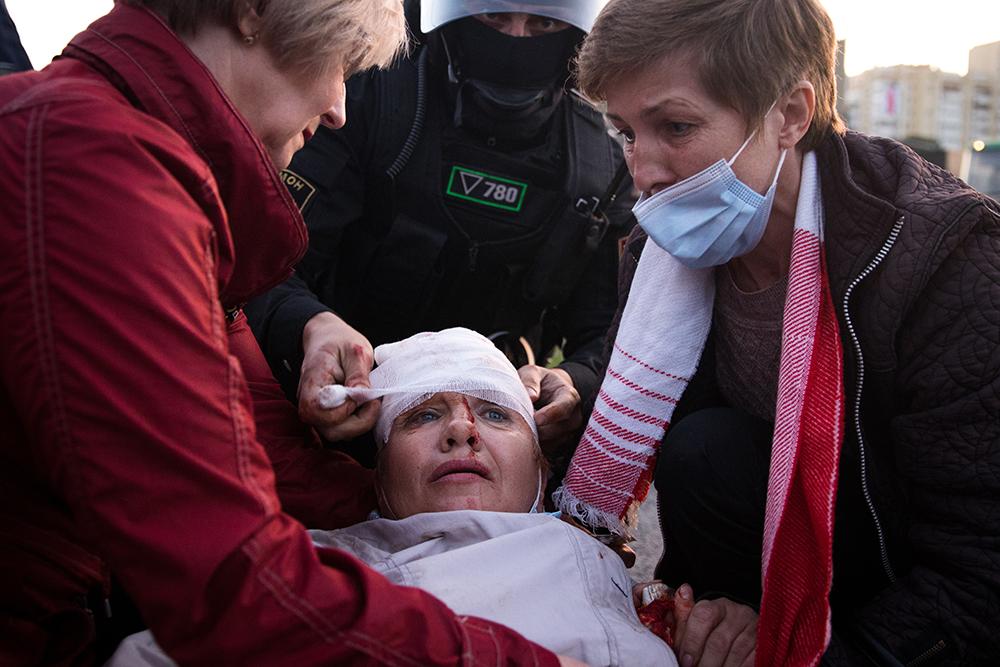 Ein Demonstrant wird bei friedlichen Demonstrationen auf der Praspiekt Niazaliežnasci verletzt. Minsk, August 2020.